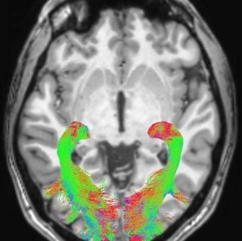 Bayer's billon-dollar Parkinson's disease bets land in the clinic