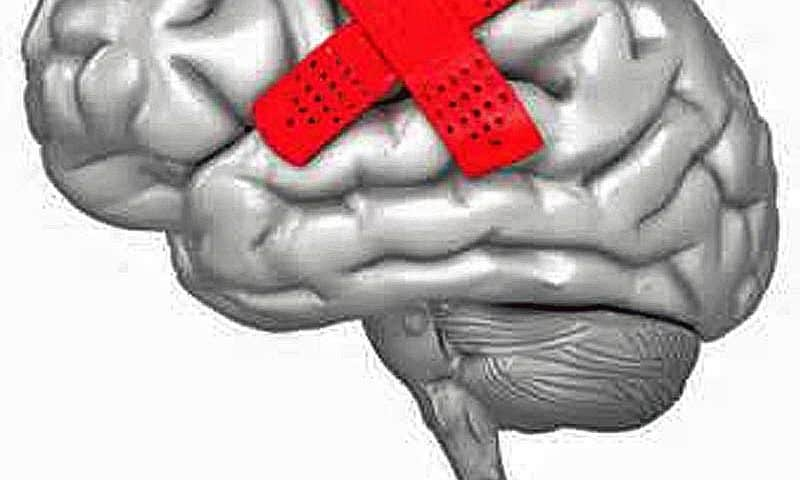 Vasopharm's brain injury drug fails to improve patient outcomes in phase 3