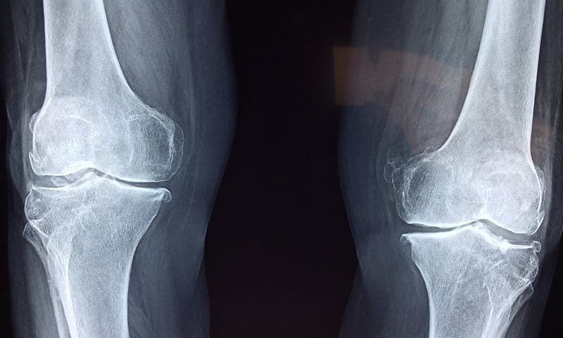 FDA clears CyMedica's app-connected muscle stimulation system to treat osteoarthritic knee pain