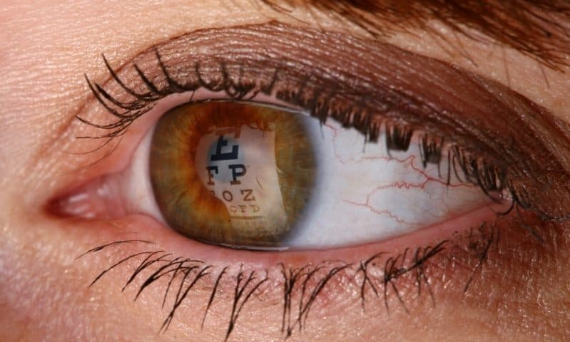 Sight Sciences pitches $150M IPO for its glaucoma, dry eye devices