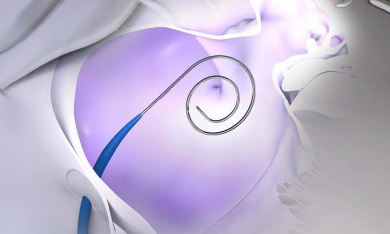 Boston Scientific puts down $1.75B to pair its cardiac devices with Baylis Medical's heart access hardware